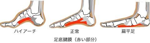 「足底筋膜炎 アーチ」の画像検索結果